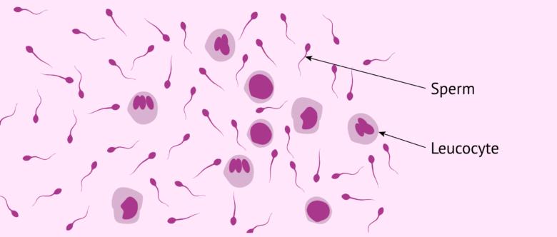 Leukocytospermia or Pyospermia - Symptoms, Causes & Treatment