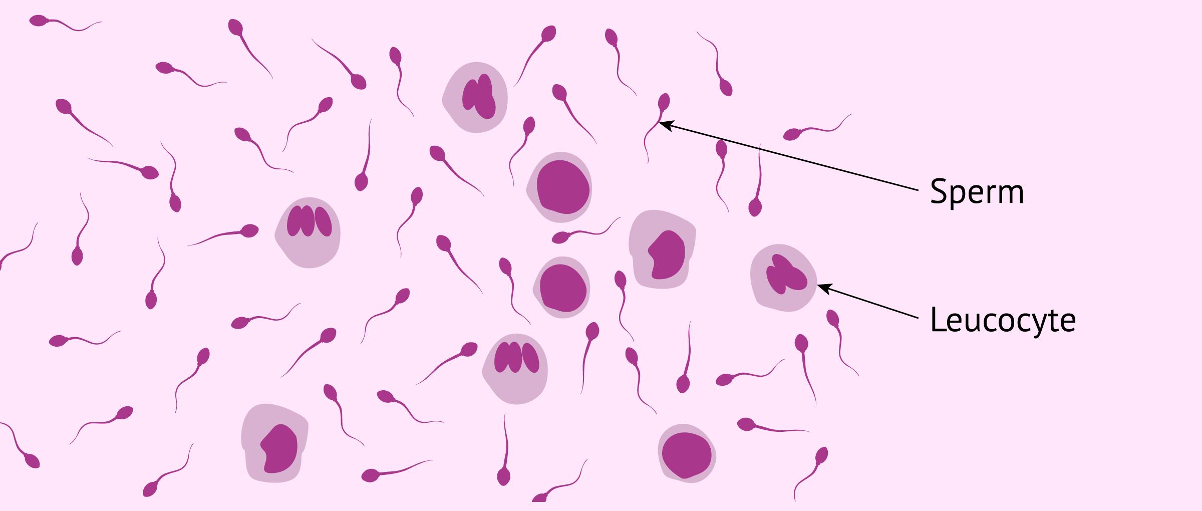 Analysis of the amount of leukocytes in semen