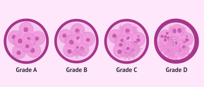 Embryo Quality & Grading – Does It Affect IVF Success?