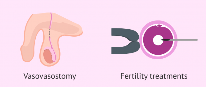 Can You Get Pregnant After a Vasectomy? – Your Realistic Possibility