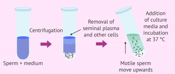 Sperm capacitation by swim-up