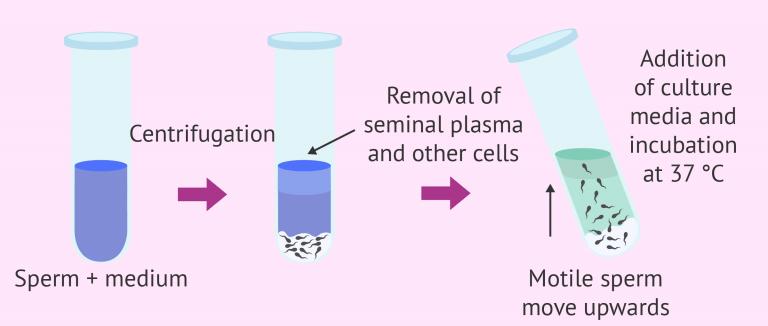sperm-capacitation-in-vitro-nude