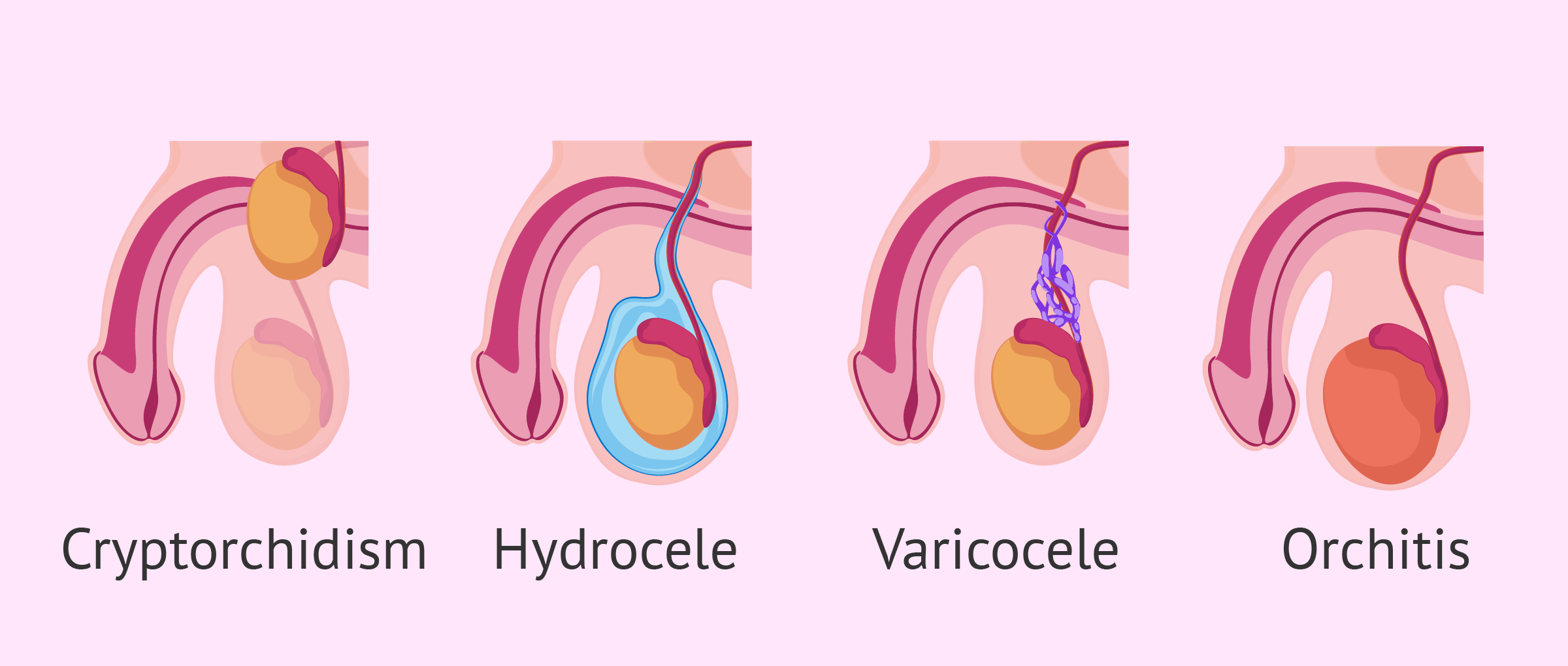 Testicular Causes for Male Infertility