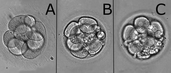 Classification of Embryos According to Their Quality