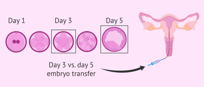 Embryo transfer on day 3 or 5?