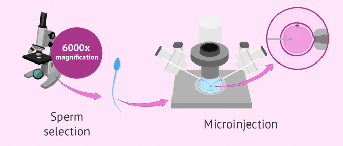 IMSI Procedure in IVF – Differences with ICSI, Cost & Success Rates