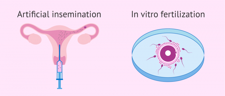 sperm-ivf-instructions