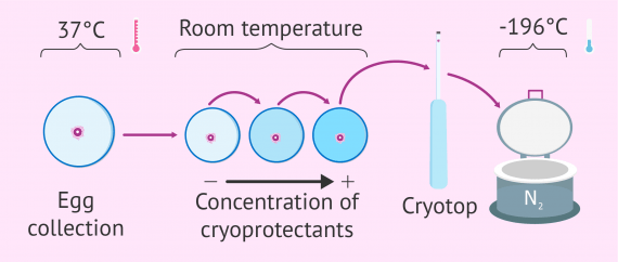 Diagram of the egg vitrification process