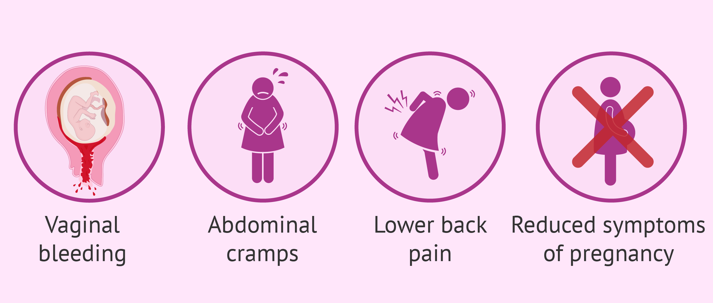Symptoms of threatened miscarriage