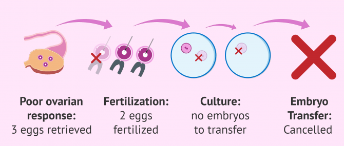 Cancellation of IVF cycles for poor ovarian response