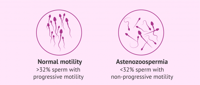 Imagen: ICSI to treat asthenozoospermia or abnormal sperm motility