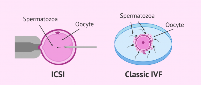 Imagen: Difference between classic IVF and ICSI