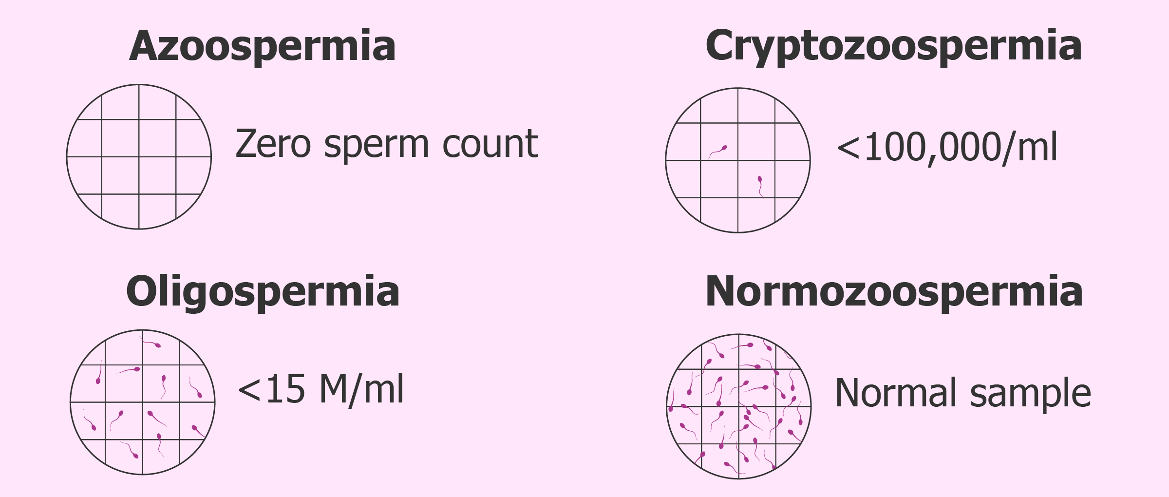 What is azoospermia and how is it diagnosed?