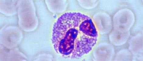 immunological-causes