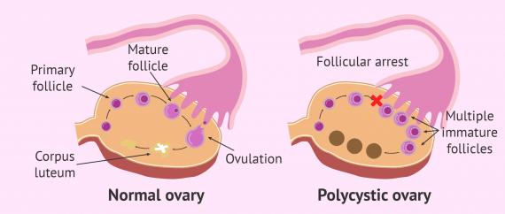 Normal ovary vs. polycystic
