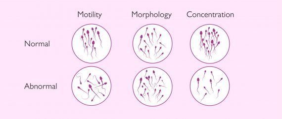 Combined sperm pathologies: oligoasthenoteratospermia
