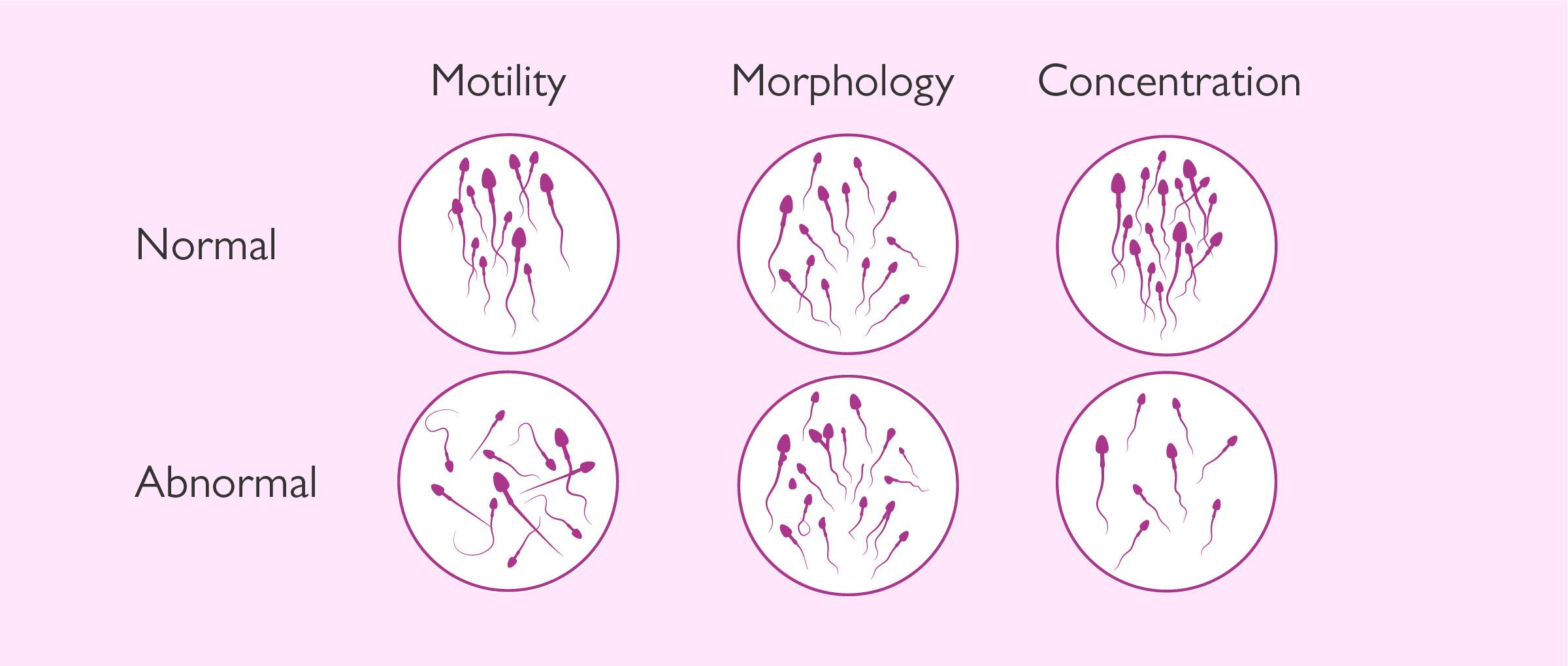 minimum sperm count for fertility