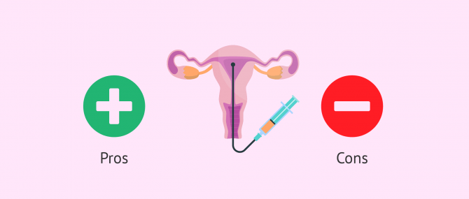 What Are the Advantages of Intrauterine Insemination?