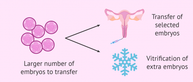 Pros of day 3 embryo transfers