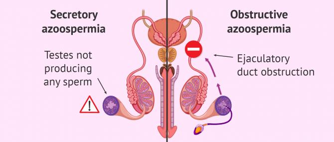 Azoospermia – Can a Man Actually Have Zero Sperm Count?
