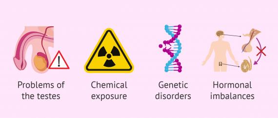 Causes of secretory azoospermia