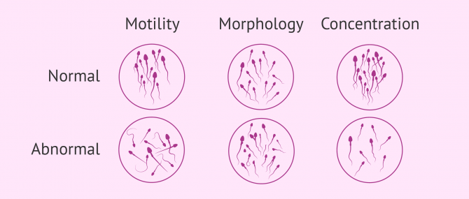 Sperm quality for pregnancy