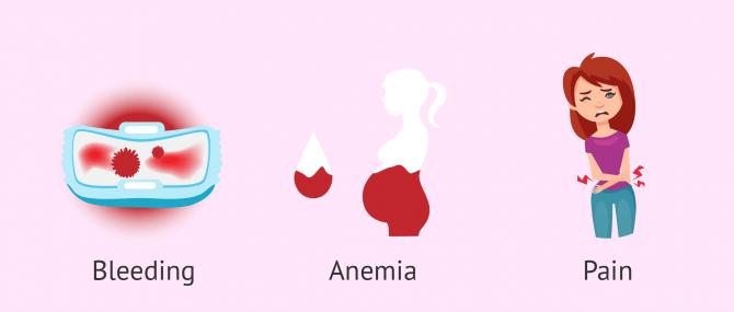 Symptoms of uterine polyps