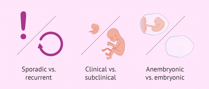 Types of spontaneous abortion