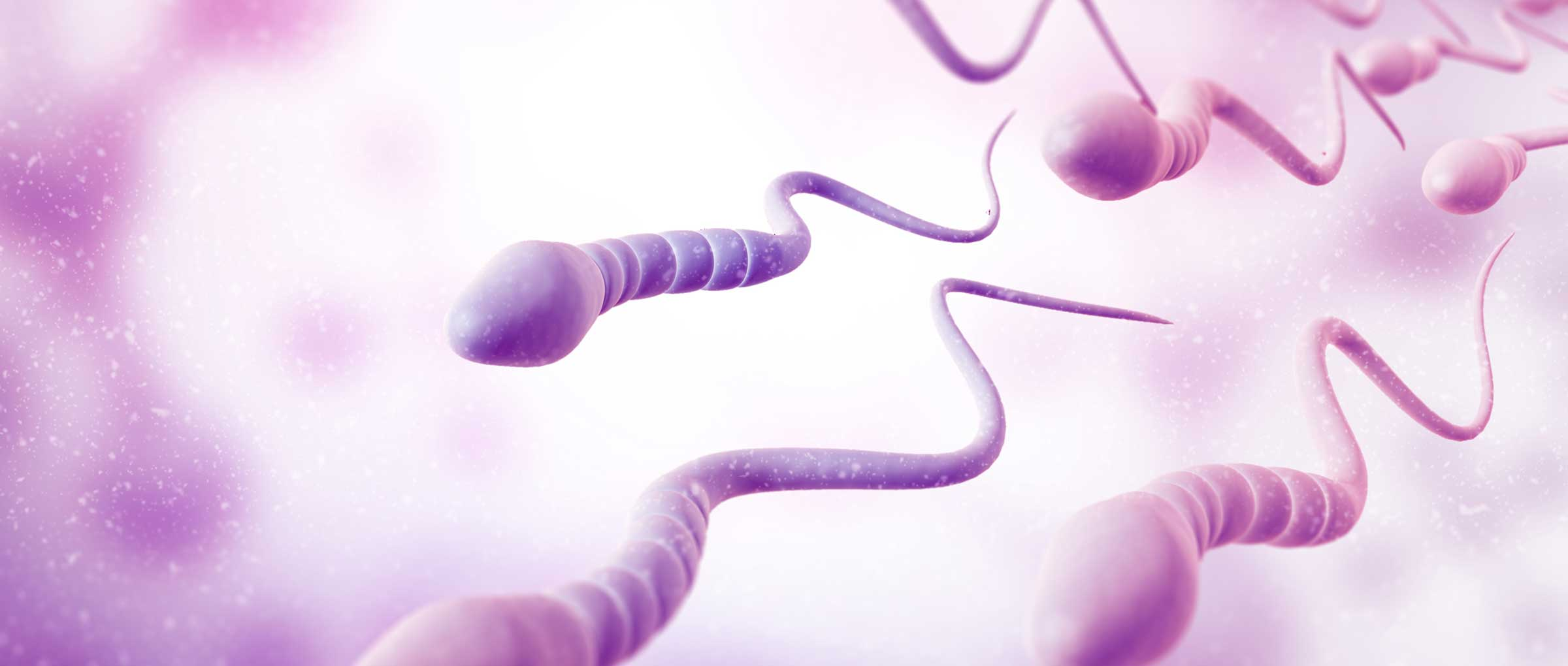 Apoptotic sperm in the ejaculate