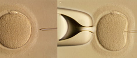 An alternative to conventional IVF