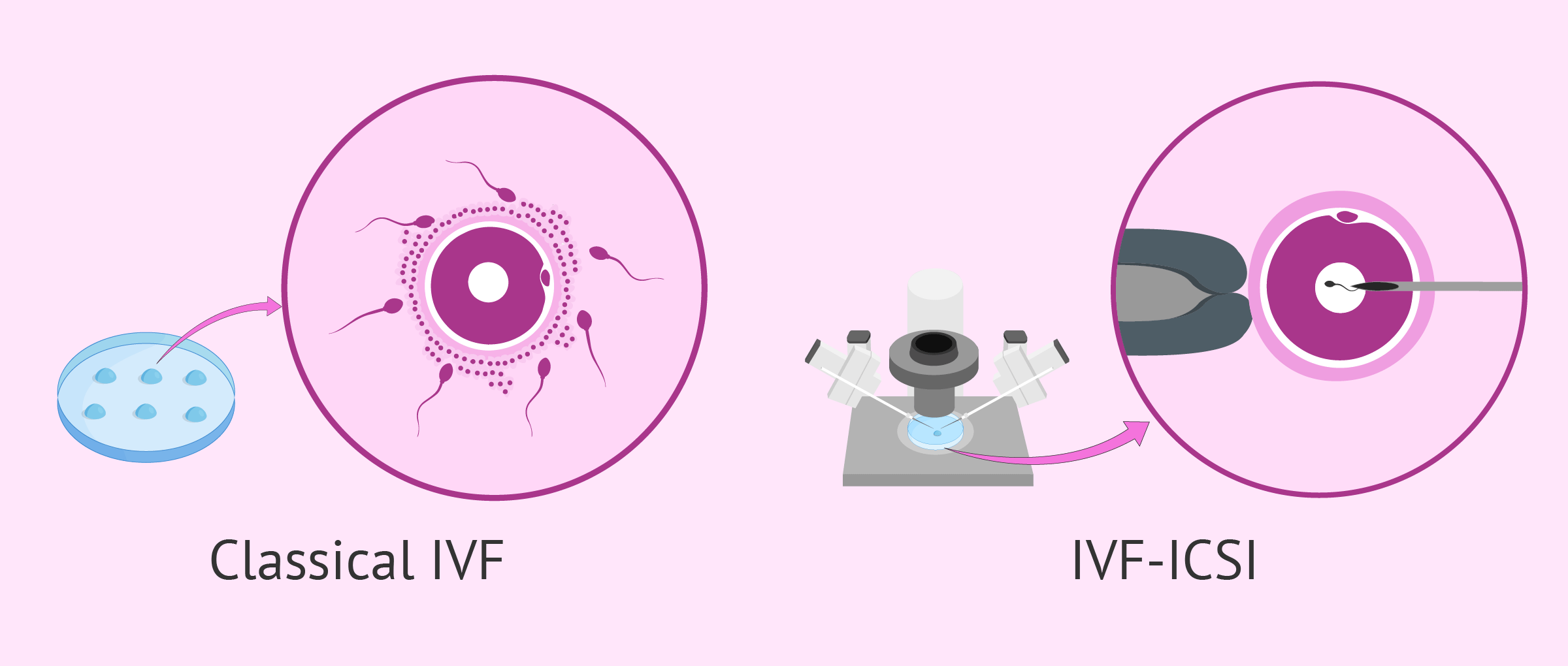 What Is the Difference between Conventional IVF & ICSI?