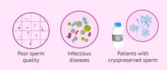 ICSI and male infertility