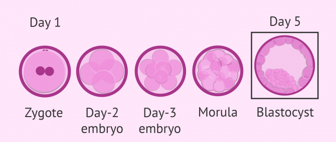 What Is IVF Blastocyst Culture? – Success Rates & Timeline