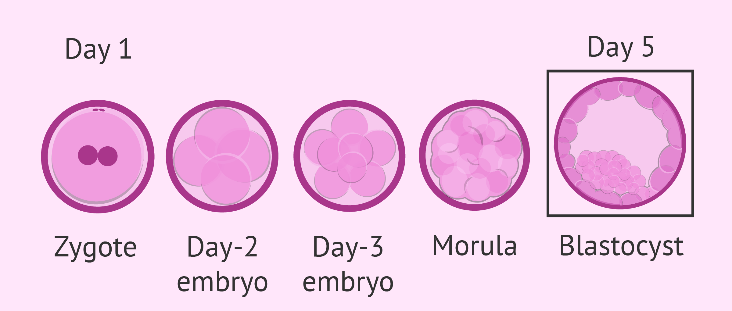 What Is IVF Blastocyst Culture? - Success Rates & Timeline