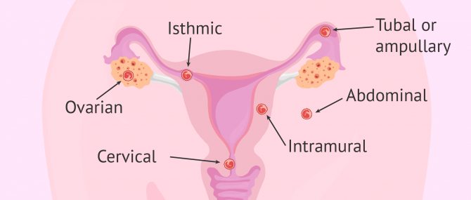Labelled diagram of the different types of ectopic pregnancy
