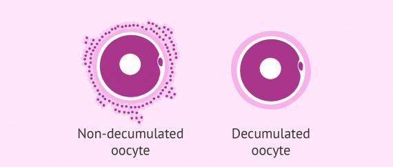 Oocyte denudation in ICSI