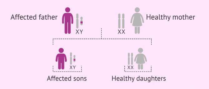 Y-linked inheritance pattern