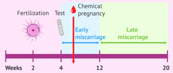 Early vs. late miscarriage