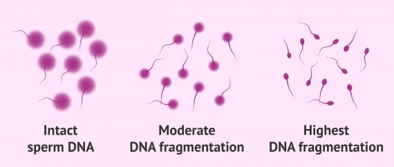 Sperm Chromatin Dispersion (SCD) Test