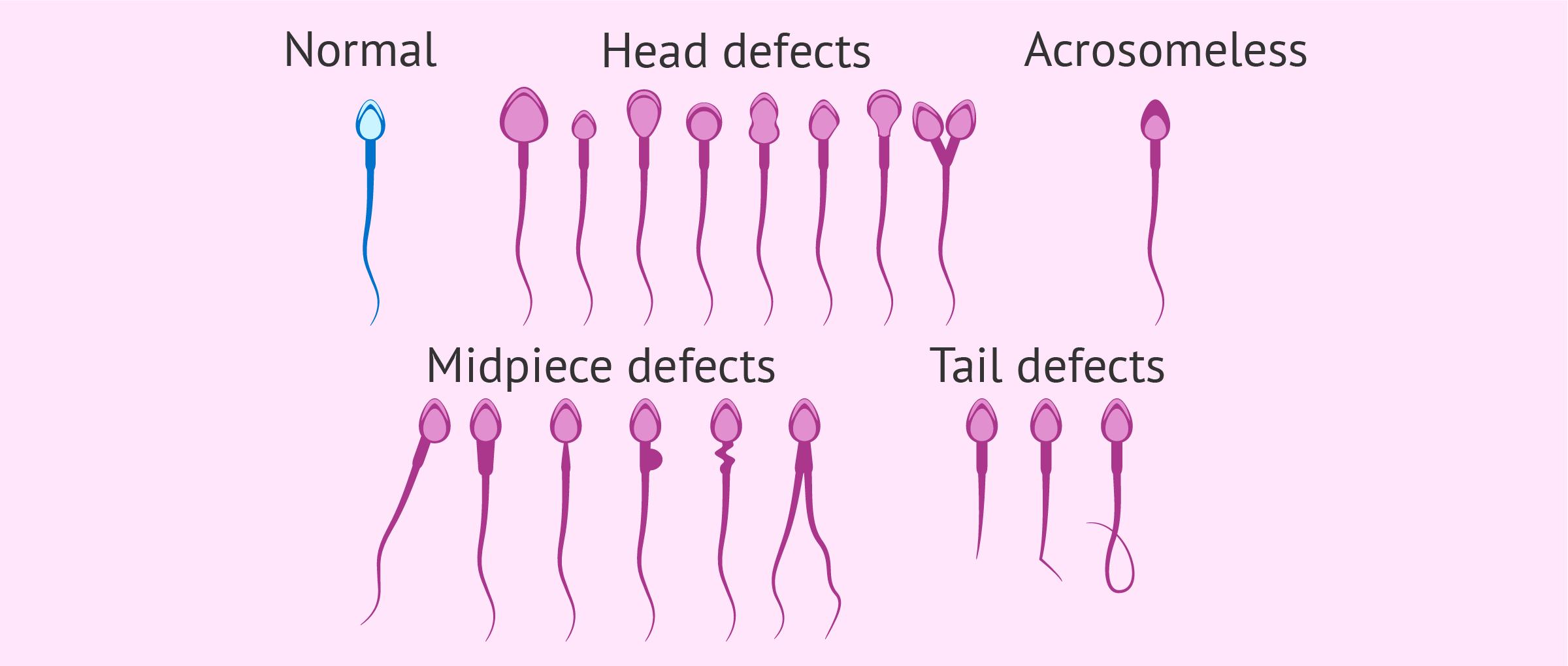 Types of sperm morphology alterations