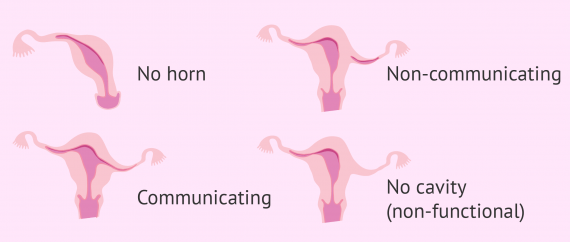 Types of unicornuate uterus