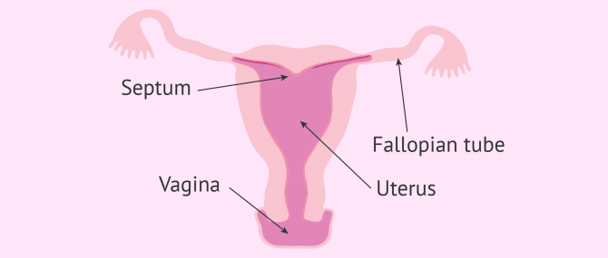 Arcuate uterus diagram