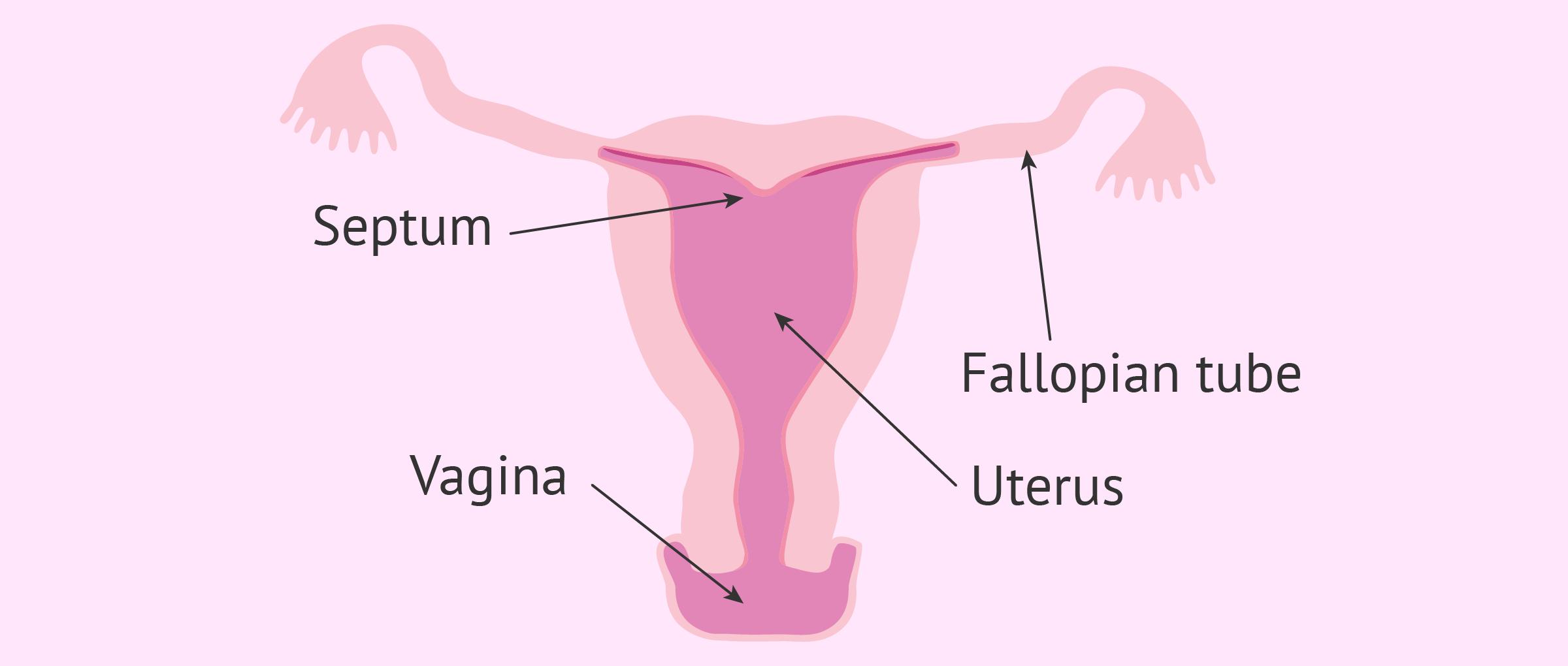 Arcuate uterus diagram
