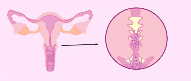 Female infertility due to antisperm antibodies