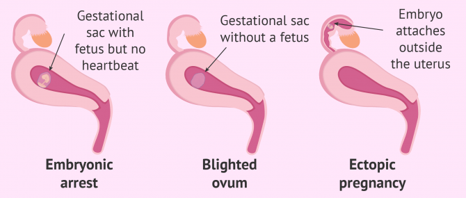 Miscarriage types according to gestational sac