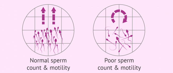 Normal vs. poor motile sperm count