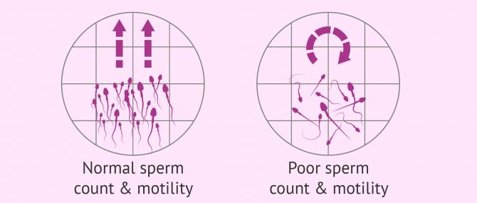 Normal vs. poor motile sperm count