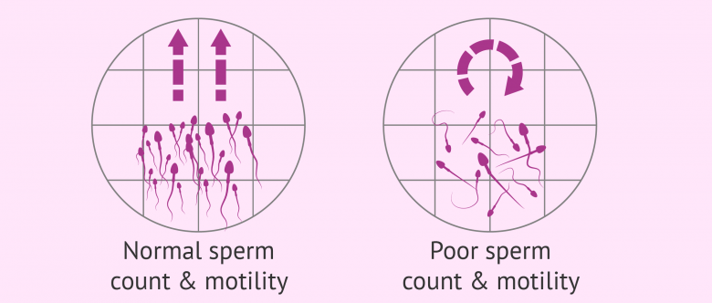 Are count motility sperm sperm