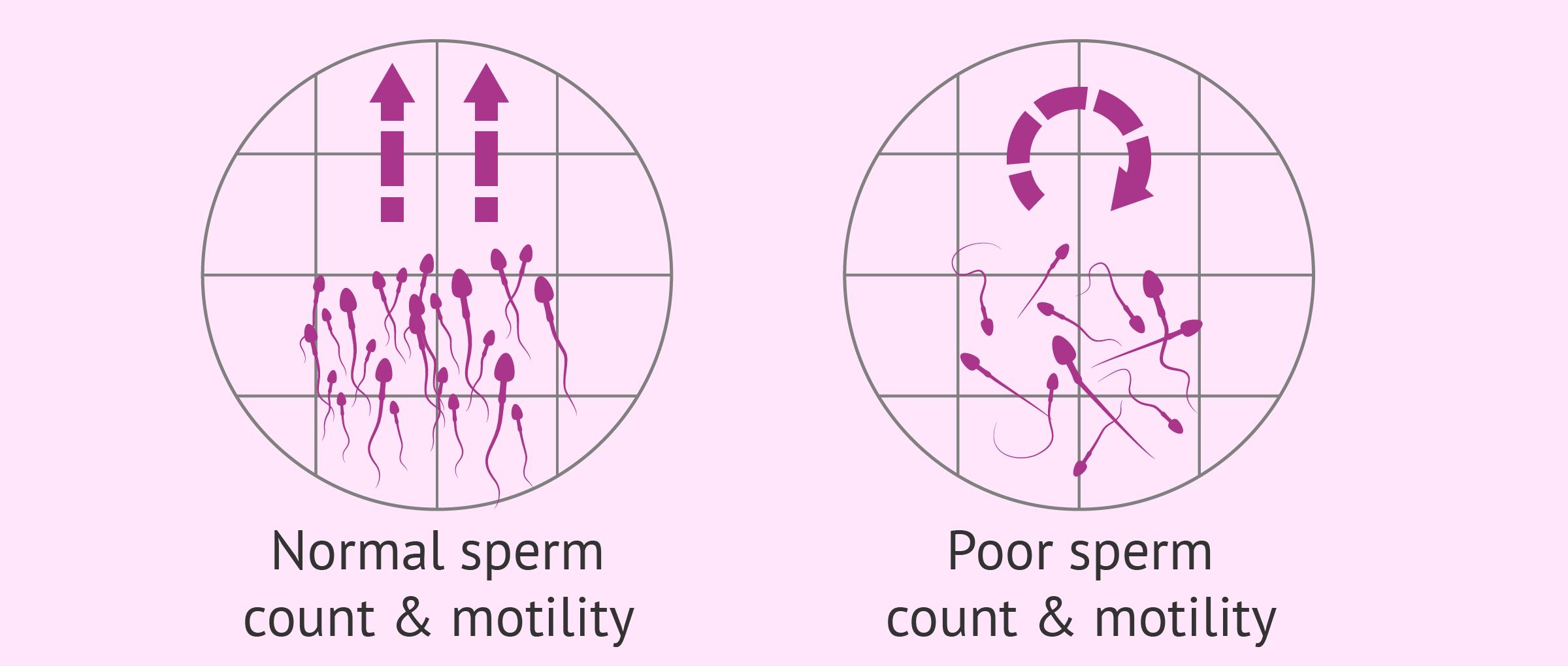 clinics of perform sperm seperation