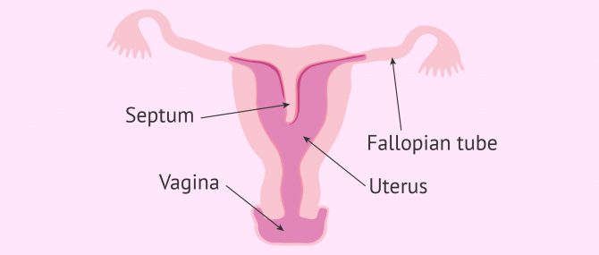 Septate uterus diagram